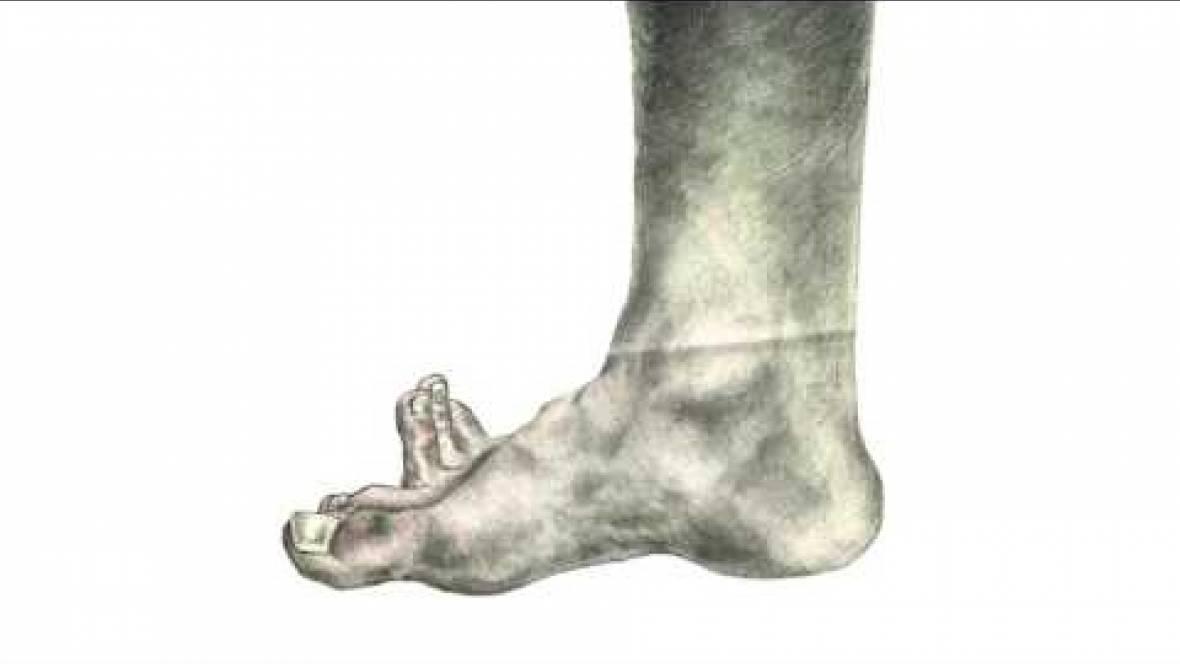 The Choir of Toes by Piotr Dudek